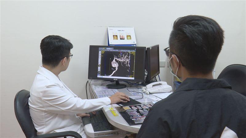 腦動脈瘤 後山拆彈專家提供完善治療