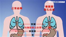 「橫膈膜裂孔疝氣」胃食道逆流半世紀 仁波切在台灣治好了(圖/台中慈院提供)
