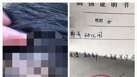 中國,內蒙古,幼兒園,虐童,針(圖/翻攝自微博)