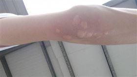 蚊子,叮,防蚊液,櫛瓜,癢