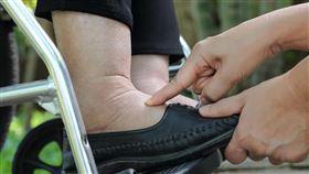 6旬男雙腳浮腫宛如「麵龜」,竟是心臟衰竭導致(門諾醫院提供)