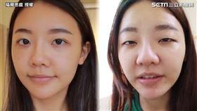 ▲許多人會尋求醫美手術改善單眼皮的問題。(圖/福爾思庭 授權)