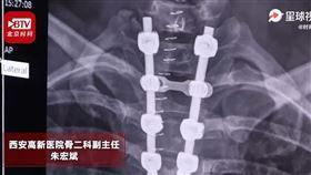 中國,陝西,健身,肚臍,伏地挺身,癱瘓(圖/翻攝自時間視頻)