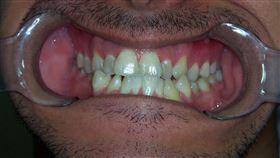 蛀牙(Pixabay)
