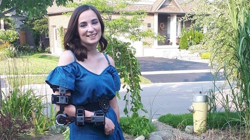 捐血重大疏失!17歲花樣少女遭「誤插動脈」害右手殘廢