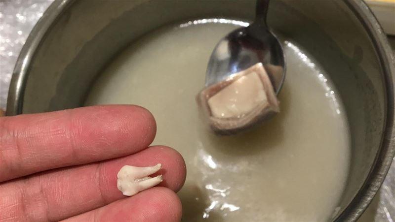 四神湯喝到一顆牙齒 男歌手:不是人