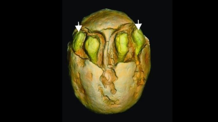 挖到7顆化石!學者驚「木乃伊等級」:1500萬年前的棗