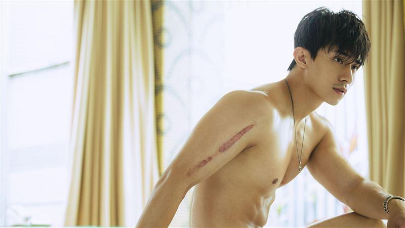 25歲得骨癌崩潰!男星全裸曝「骨肉瘤」傷疤 揭抗癌心酸