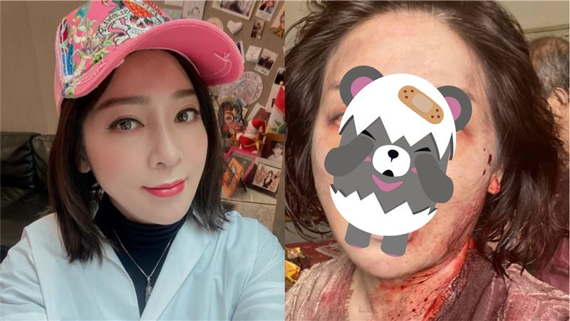 王彩樺曬噴血兇照 驚悚活屍嚇壞粉絲