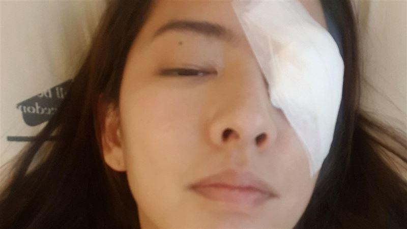 《與惡》女星遭重毆 送醫眼角膜破裂