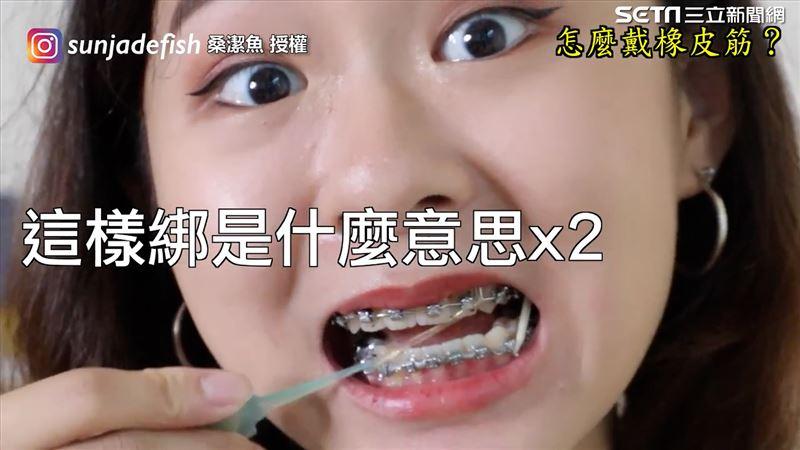 尷尬!戴牙套最令人崩潰的5件事 橡皮筋竟然將食物彈飛?