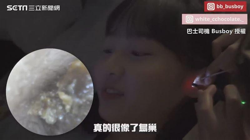 正妹體驗香港採耳 掏出巨大耳結石