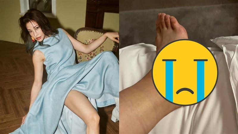 她腳腫大包痛3星期 就醫才知很嚴重